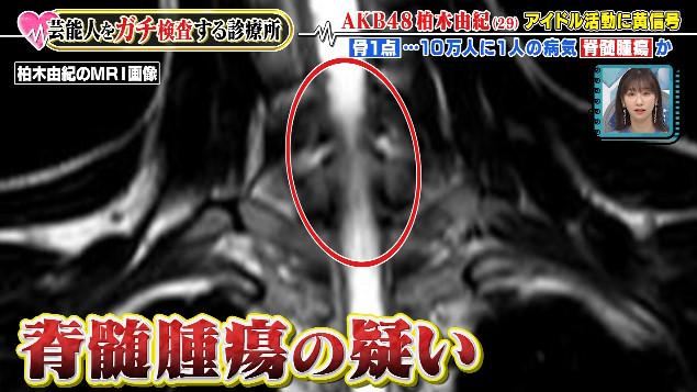 Diagnosa Dokter Tentang Penyakit yang di Derita Kashiwagi Yuki
