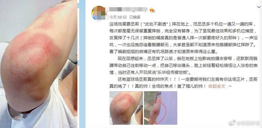 fan chengcheng got hurt in shooting